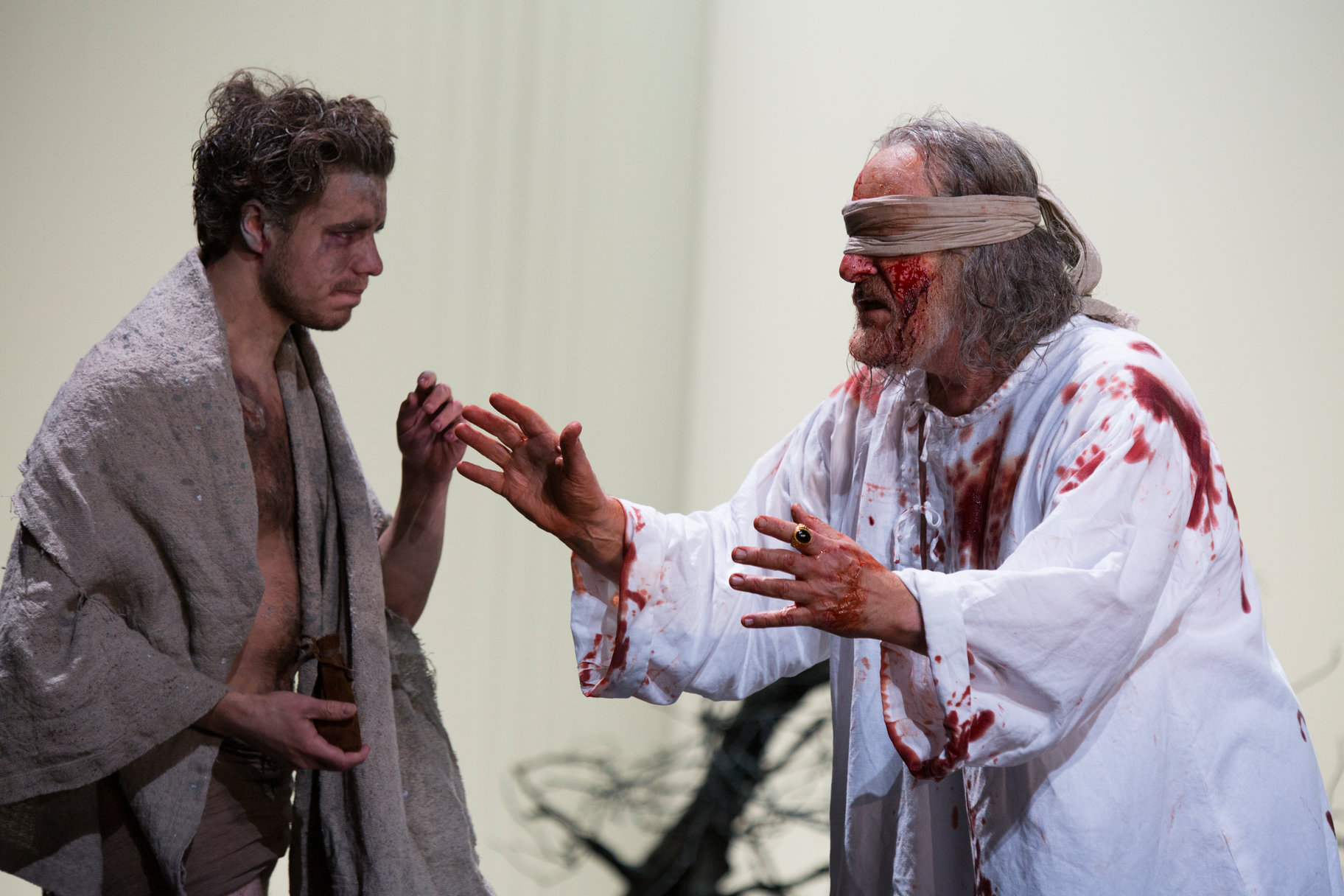 A dirty young man in a blanket talks to a blindfolded older man who is covered in blood.