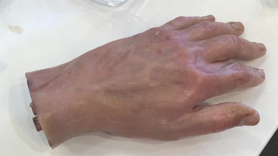 severed hand palm down on a white worktop